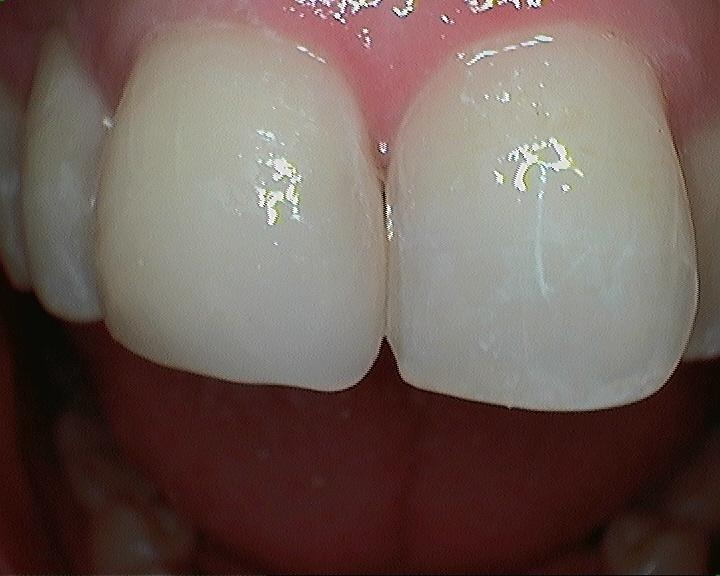 Chipped-Front-Tooth-After-Image