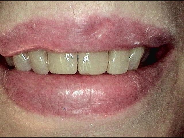 After Contouring and Fillings | White Bear Smiles | White Bear Lake, MN