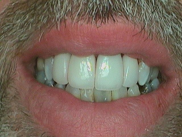 Patient with Updated Crowns on Teeth | White Bear Smiles | White Bear Lake, MN