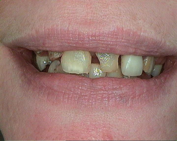 Before Dentures and Lower Partial Dentures | White Bear Lake, MN