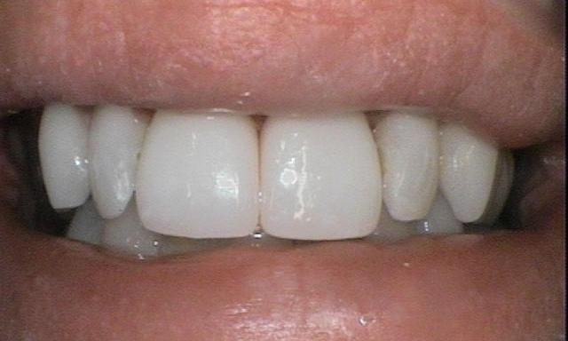 ZOOM Whitening and Crowns