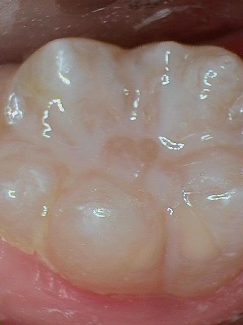 Sealants-After-Image