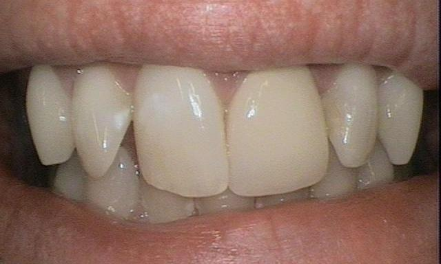 ZOOM-Whitening-and-Crowns-Before-Image